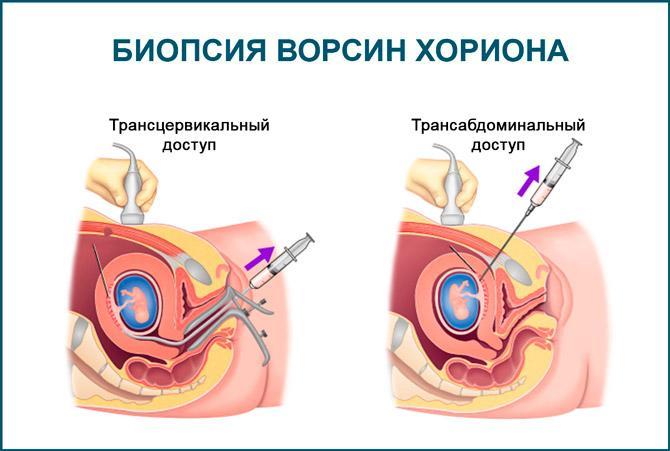 Биопсия хориона